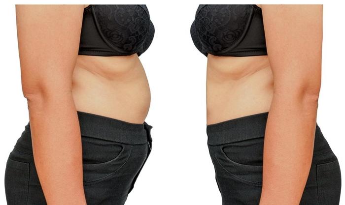 grassi o carboidrati