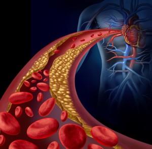 lipidomica e grassi alimentari