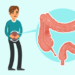 Sindrome dell'Intestino Permeabile (Leaky Gut)